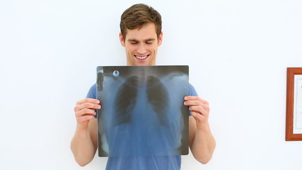 Smiling patient showing his positive xray