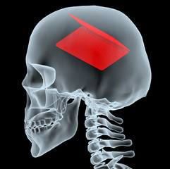 X-ray of a head with notebook instead of the brain