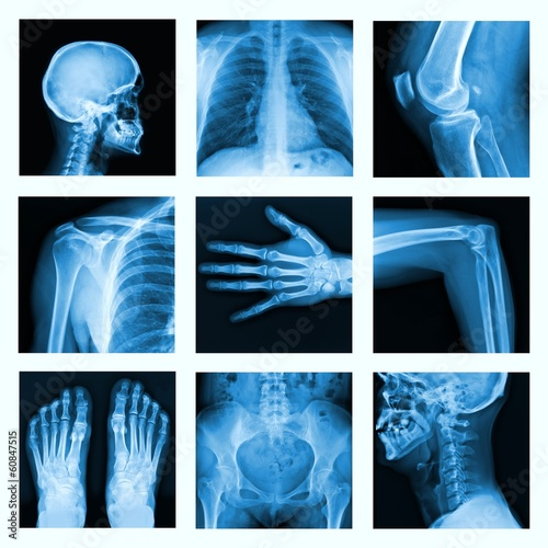Collage of many X-rays in very good quality. - 60847515