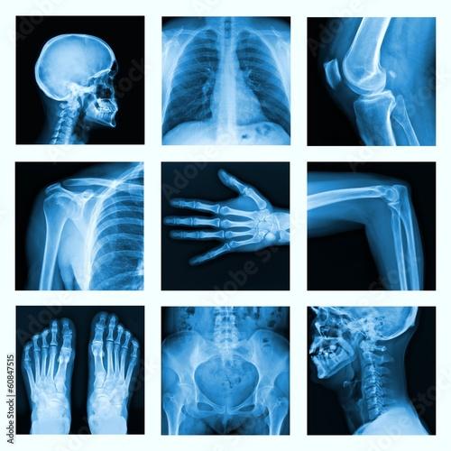 Leinwandbild Motiv Collage of many X-rays in very good quality.
