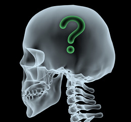 X-ray of a head with question mark