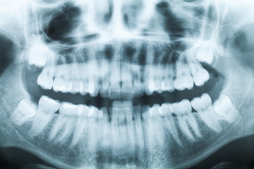 X-ray image of teeth and mouth with four molars