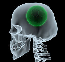 X-ray of a head with soccer ball instead of a brain