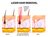 Laser hair removal. Vector diagram