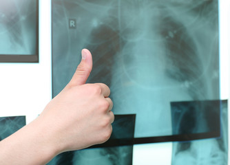 Thumb up on the background of the X-ray images