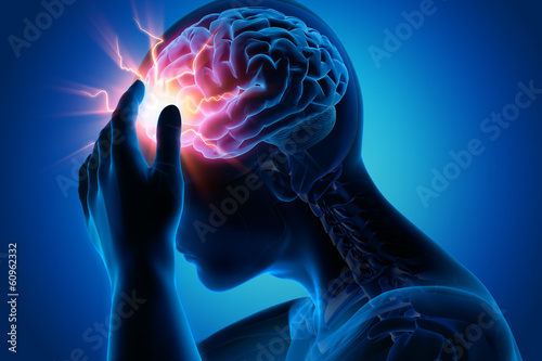 Leinwanddruck Bild Migräneanfall