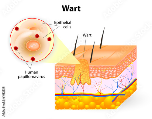 anatomy of Wart