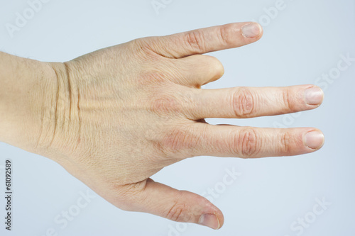 Amputated finger