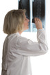 Doctor examining x-ray with loupe