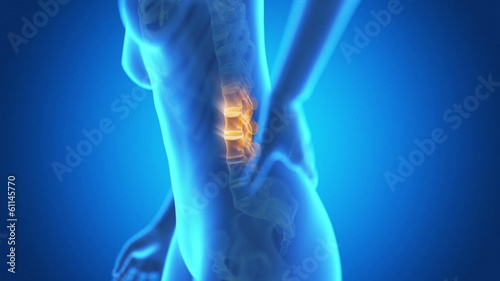 medical animation - pain in the lower back