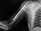 radiografia del bracciofrattura