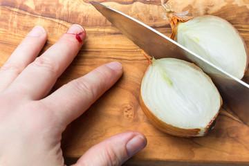 Verletzung, Schnitt in Finger bei Zwiebel schneiden