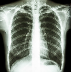 normal human's chest