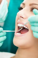 Close up of Dentist examination