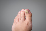 Onychomycosis, Nail Fungus. High definition image.