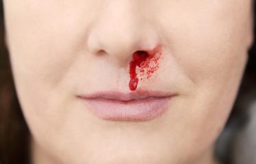 Nasenblut