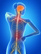 medical 3d illustration - female having backache