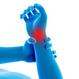 medical 3d illustration - man having a painful wrist