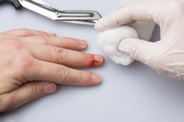 Arzt versorgt Schnittwunde mit Tupfer