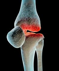 Osteoartrosi, artrosi, malattia ginocchio, ossa