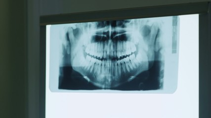 3of3 dentist looking at xray image in dental studio