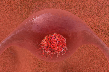 Gebärmutterhalskrebs - 3d Render