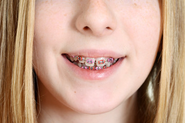 Closeup teen girl with braces