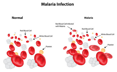 Malaria Infection