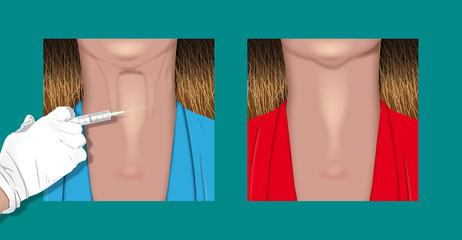 botulinum neck