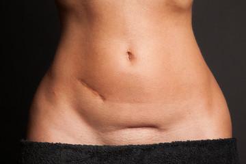 Bauch einer schlanken Frau mit Narben
