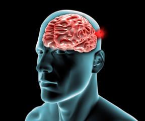 Aneurisma cerebrale, cervello testa