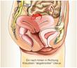 Weibliche Geschlechtsorgane.Uterusverschiebung