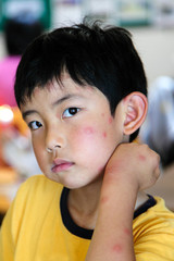Child With Multiple Mosquito Bites