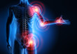 Leinwanddruck Bild - Rheuma-Schmerzpunkte