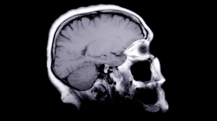 Computed tomography of the human brain.
