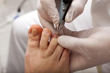 Nagelbehandlung bei einem Fußpfleger