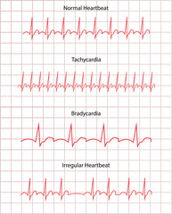 ECG Pathology DIsease