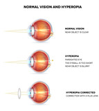 Hyperopia and normal vision. Hyperopia is being farsighted.