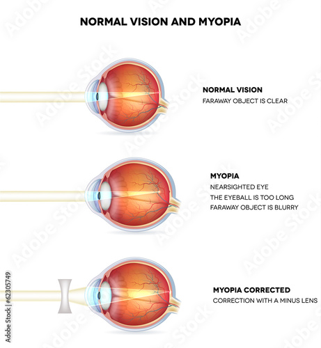 Myopia and normal vision. Myopia is being shortsighted.