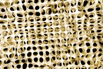 Osteoporose - 3D render