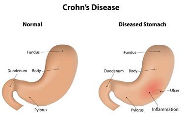Crohn's Disease IBD