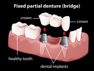 A fixed partial denture