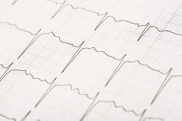 Normal Electrocardiogram Record On Paper