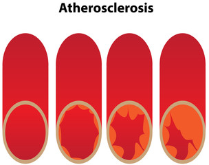 Athersclerosis