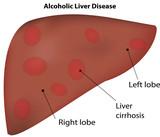 Alcoholic Liver Cirrhosis Disease poster