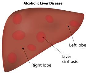 Alcoholic Liver Cirrhosis Disease
