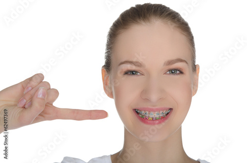 Smiling happy girl indicates braces on teeth