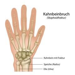Kahnbeinbruch, Skaphoidfraktur