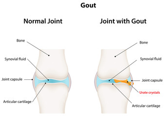 Gout Synovial Joint