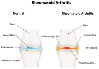 Rheumatoid Arthritis Synovial Joint